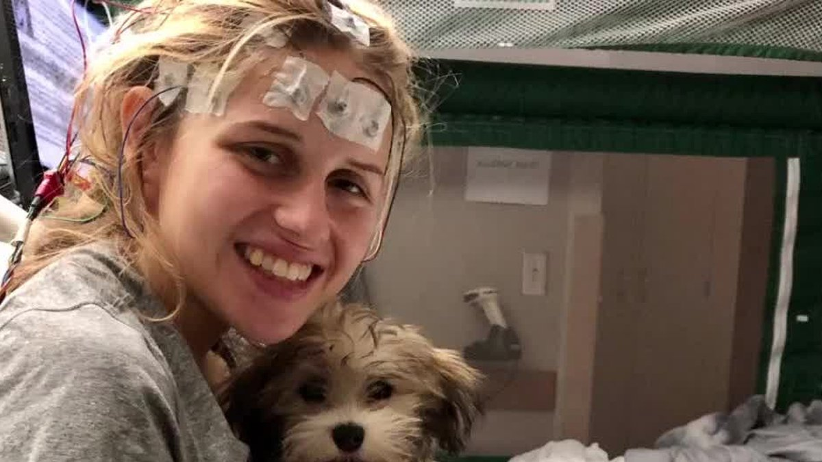 UC medical staff helps woman with 'brain on fire' illness