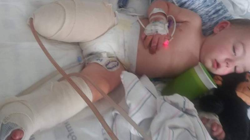 An 18-month-old baby was run over by a lawn mower nearly a month ago and is now recovering at...
