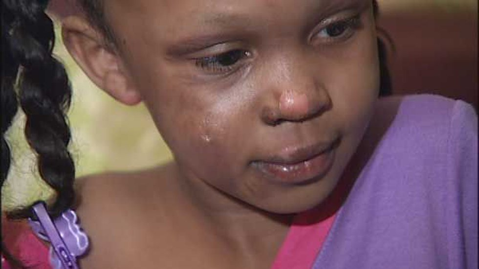 6-year-old Trinity Burks suffered burns to her face, legs and arms.